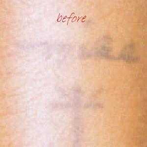 dövme,silme,nasıl,yapılır