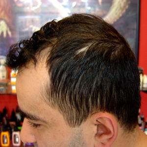 saç,kıran,tedavisi