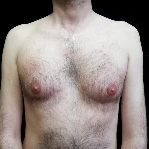 göğüs,gogusucu,ten,rengi,ile,vitiligo,kapatma