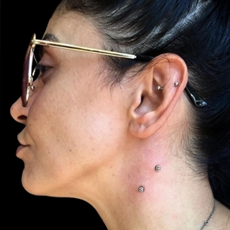 snake,bites,boyun,dermal,piercing