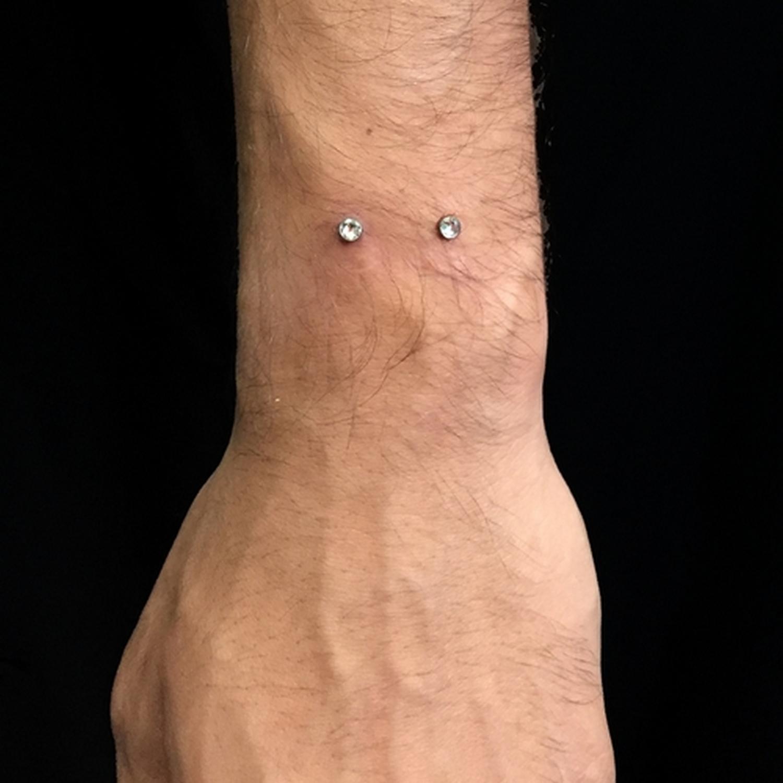 el,bilegi,dermal,piercing,besiktas