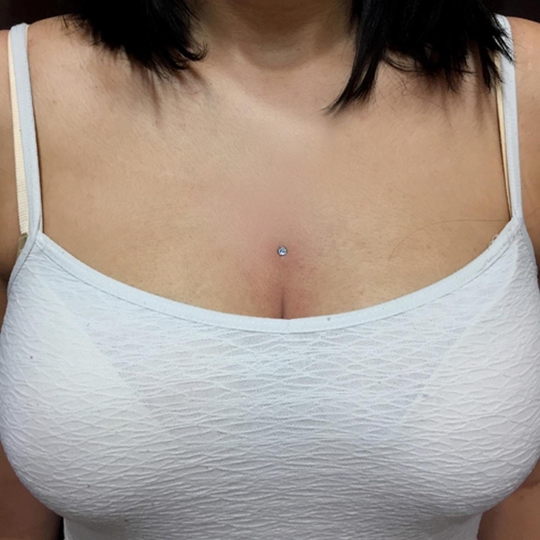 göğüs,gögüs,dermal,piercing,istanbul