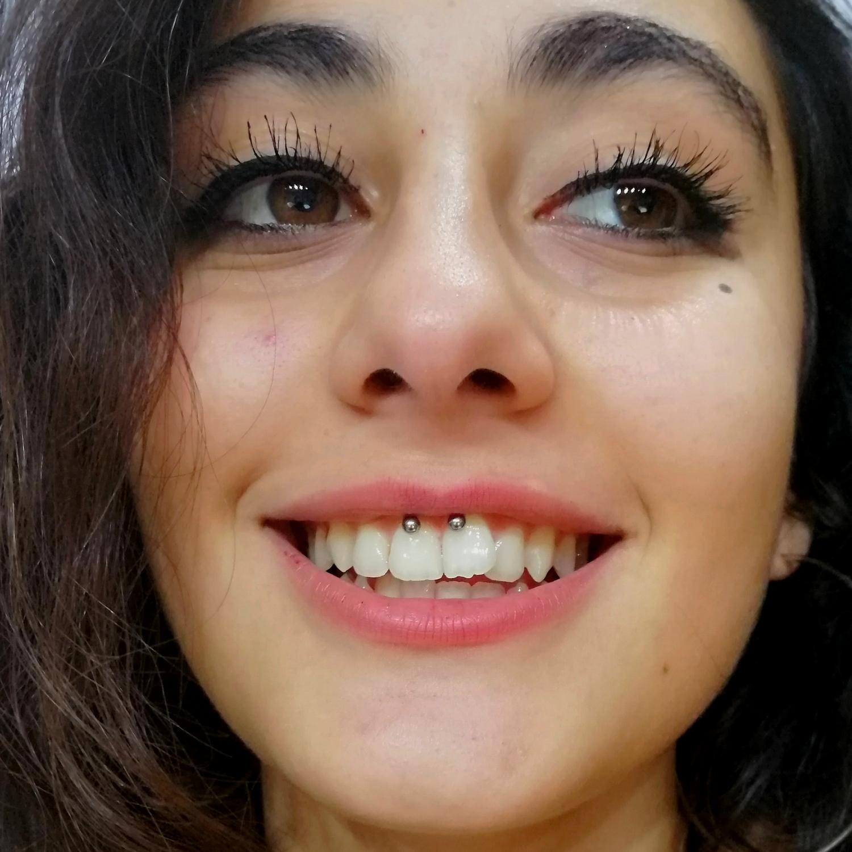 smiley,dudak,piercing,fiyat,besiktas