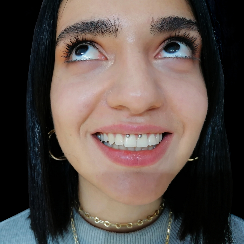 smiley,smile,piercing,besiktas,yapan