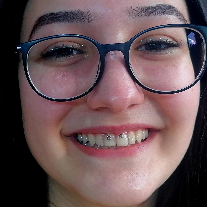 smiley,dudak,ici,bagi,piercing