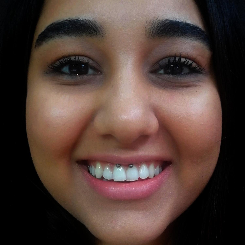 smiley,piercing,dudak,bağı,içi