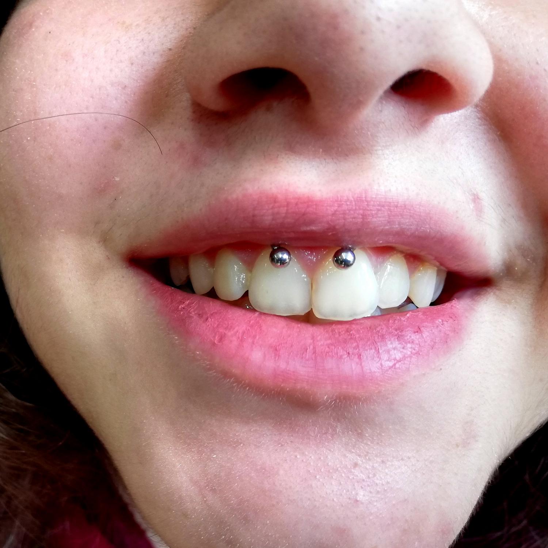 smiley,lip,piercing,İstanbul,fiyatlari