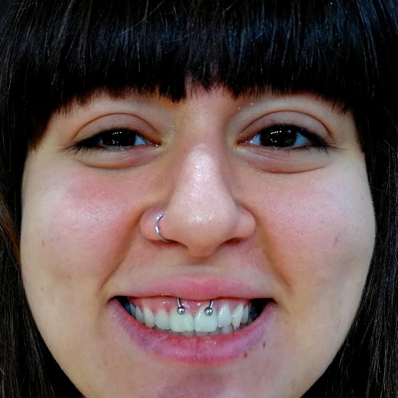 dudak,bağı,smiley,piercing,besiktas