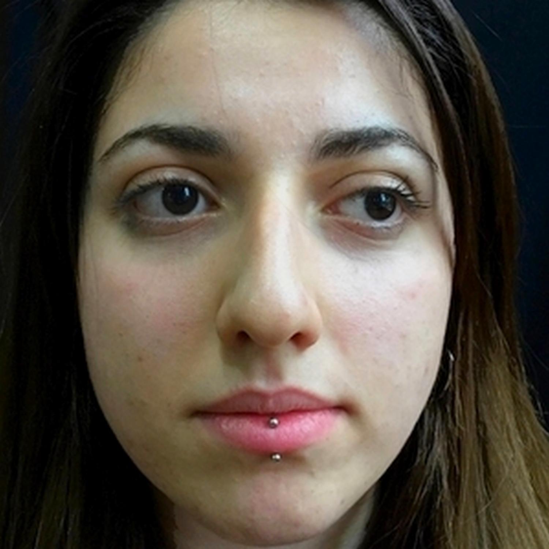 vertical,labret,dudak,piercing,titanyum