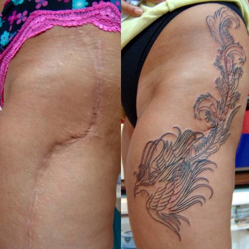 dövme,ile,ameliyat,yara,izi,kapatma